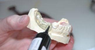 saúde bucal: prótese dentária